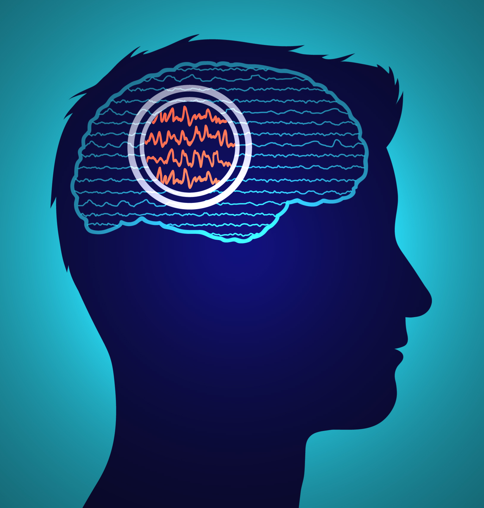 AI and Probabilistic Modeling Help Identify Epilepsy ...